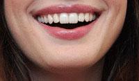 zähne-selber-aufhellen